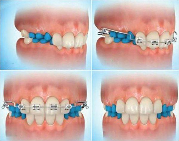 orthodontie lausanne